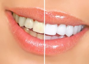 Teeth Whitening In Lithia Fl Watts Dental